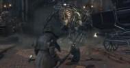 Cleric Beast Boss Battle Walkthrough